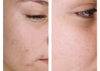 Microneedling Acne & Acne Scars Treatment