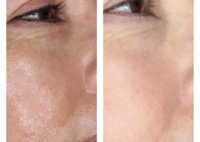 Microneedling Rosacea Treatment & Pore Size Reduction Before & After 1 procedure