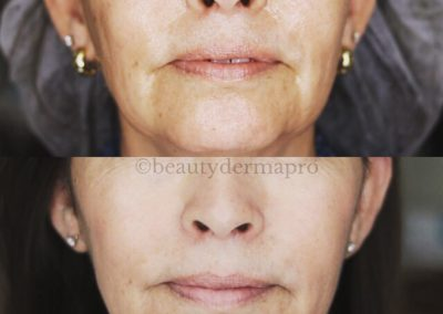 Microneedling Before & After 1 procedure
