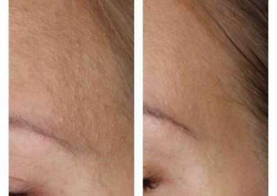 Microneedling Skin Texture Improvement after 1 treatment