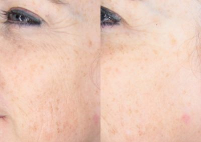 Microneedling Full Face Before & After 1 procedure