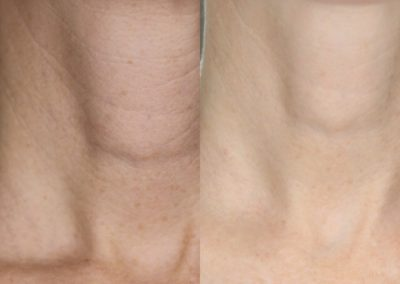 Microneedling Neck Before & After 4 treatments