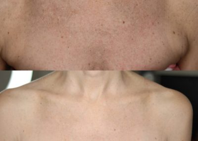 Microneedling Décolletage Before & After 4 treatments