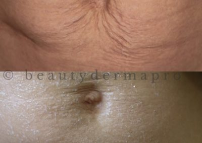 Microneedling Stretch Marks Before & After 2 procedures