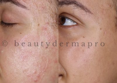 Microneedling Acne Treatment Before & After 1 procedure