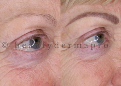 Brows Microblading Before & After