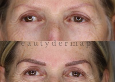Brows Micropigmentation