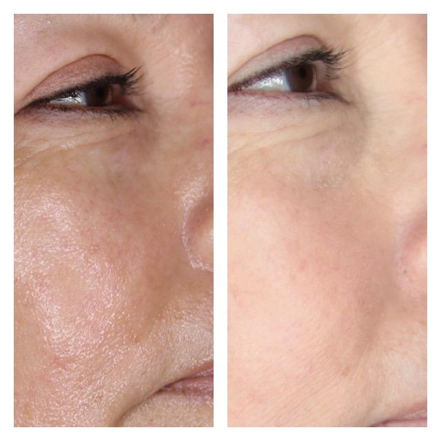 Microneedling Beautydermapro Organic Permanent Makeup