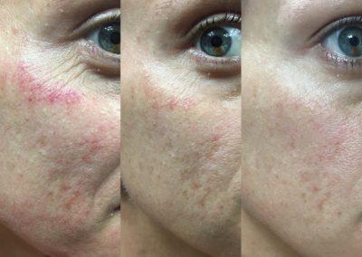 Microneedling Healing Process