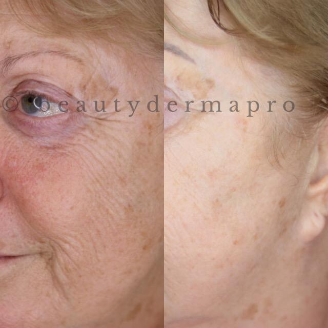 Microneedling - Beautydermapro Organic Permanent Makeup